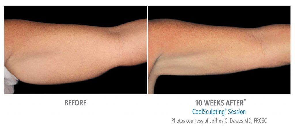 CoolSculpting® - Offered at Skin Oasis, Virginia Beach