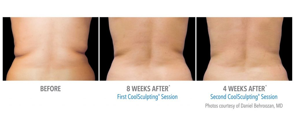 CoolSculpting® - Virginia Beach, VA